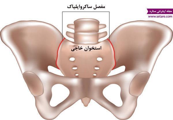 علت کمر درد در بارداری چیست و چگونه درمان می شود؟