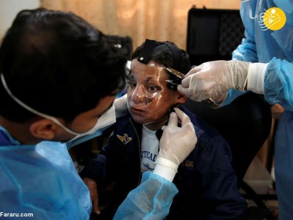 (تصاویر) ماسک سه بعدی برای قربانیان سوختگی از صورت