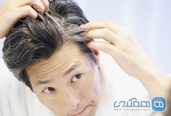 کندن موهای سفید باعث زیاد شدن آنها می گردد؟