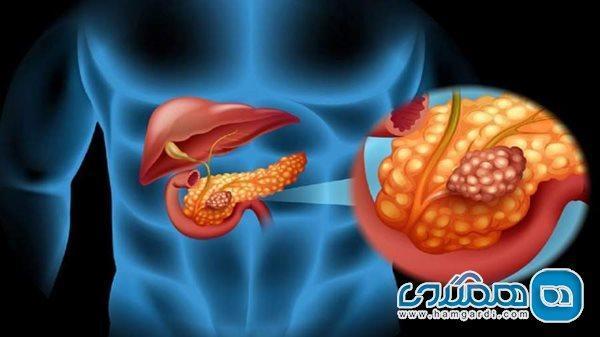 سرطان پانکراس در بدن شما ریشه دوانده است، اگر این نشانه ها را دارید