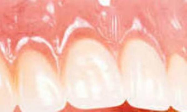 دندان های سالم با پودر جادویی!